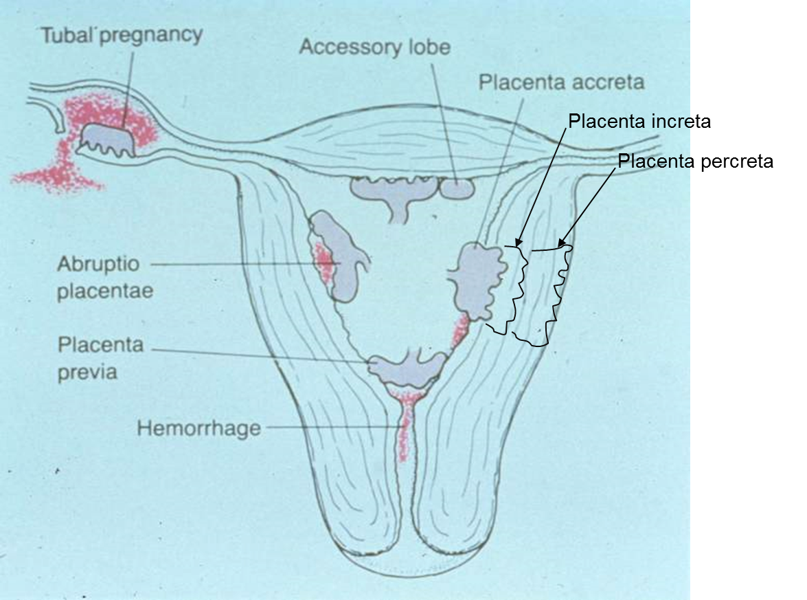 Mr week 8 female reproductive contraception pregnancydelivery the placenta invades in to the endometrial wall with increasing depth from acreta pooptronica Choice Image