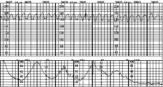 Sinusoidal Fetal Heart Rate