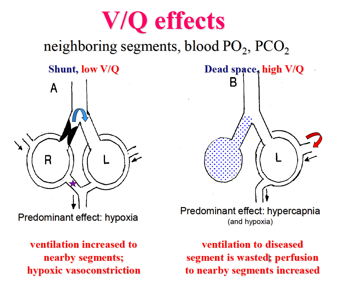 ventilation-perfusion relationships 11/7 (pulm) flashcards | memorang