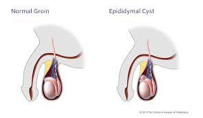 Scrotal Mass (NBME Surgery Shelf Exam: Urology) Flashcards