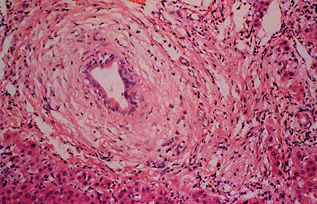 GI Liver, Pancreas, Gall Bladder Pathology (Step 1