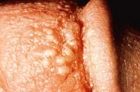 Dermatology Viral And Fungal Infections Dermatology Flashcards Memorang