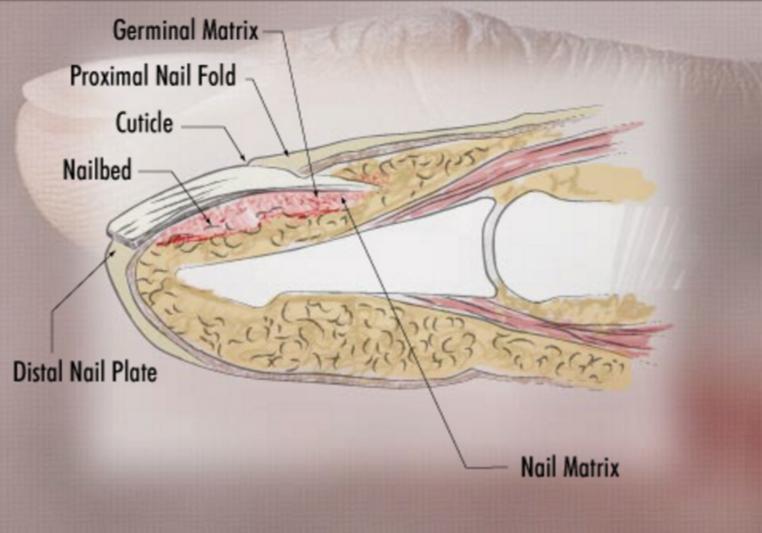Derm - Onychology (Dermatology) Flashcards | Memorang