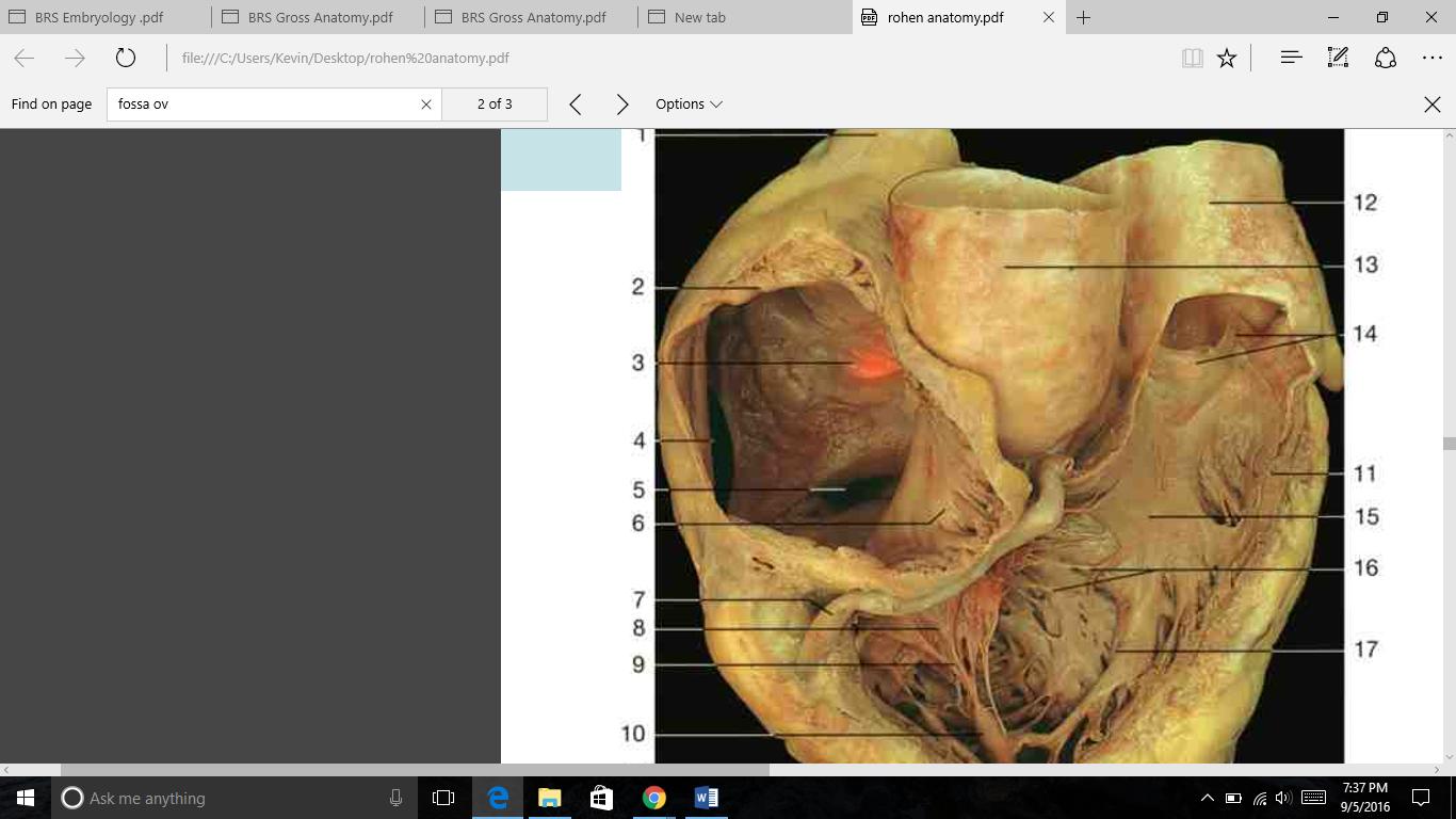THORAX LAB Week 1 PT2 (Heart anatomy) Flashcards | Memorang