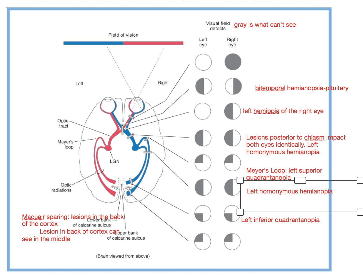 NeuroAnatomy-The Visual Pathway (Neuroanatomy-Week 1-Monday ...