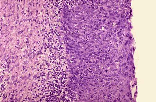 Endometrial and Cervical Pathology (USMLE Step 1: Reproduction ...