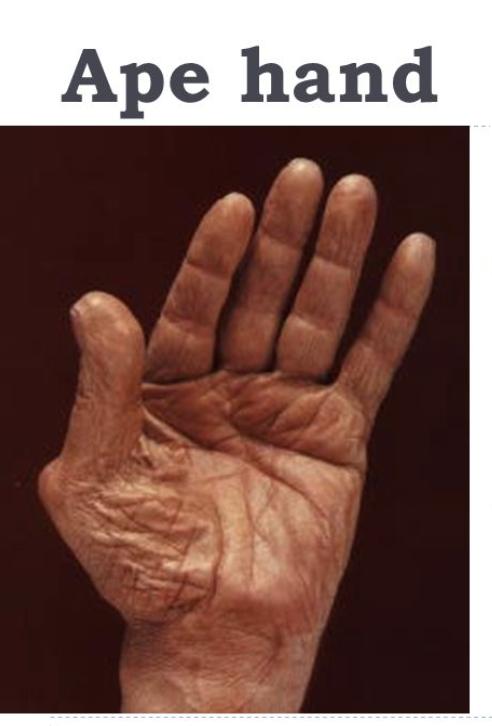 Upperlower Extremity Peripheral Nerve Syndromes Flashcards Memorang