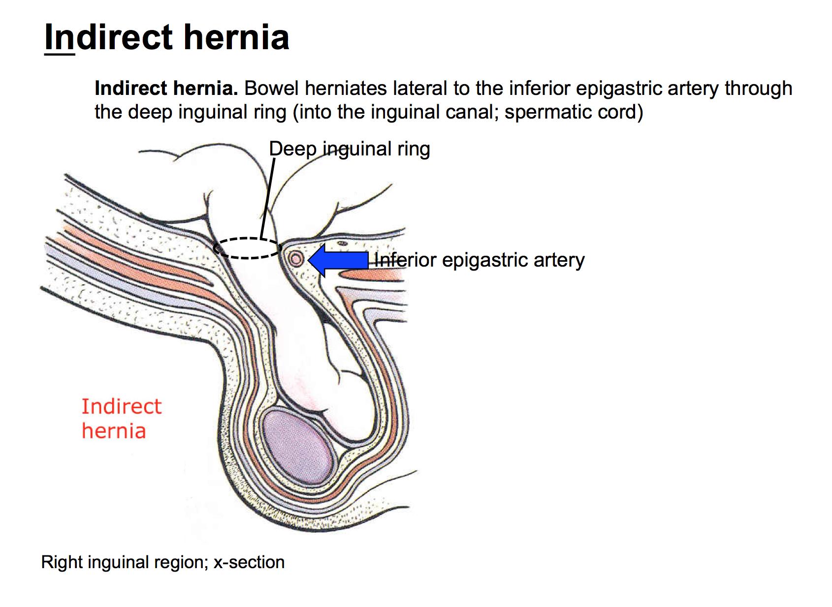 Week 6 - Abdominal Wall & Inguinal Region (Anatomy) (Phase 1 ...