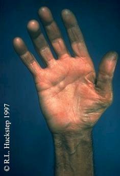 Ape Hand Deformity Splint 66985 Timehd