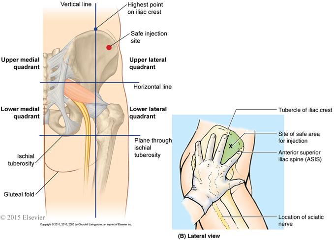 102 Gluteal Region Posterior Thigh Hip Joint Anatomy