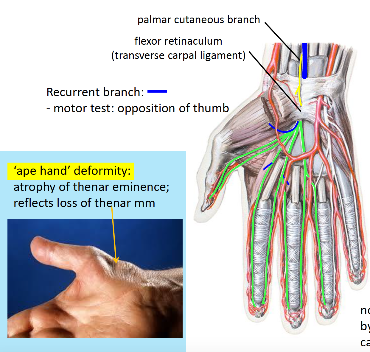 Anatomy Gs18 Ue Clinical 2 Terms From Gsanatomy Lecture 1718 2nd