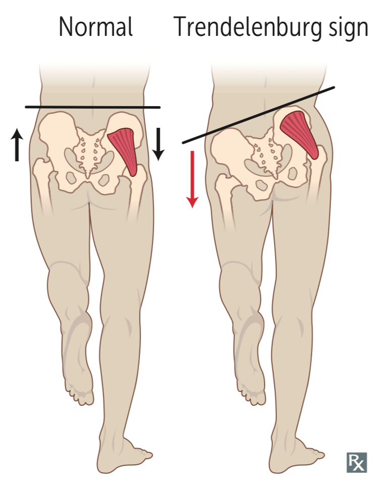 Lower Extremity Nerves and Associated Injuries (usmle