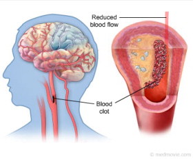 partial or complete loss of blood supply to an area of the brain which results