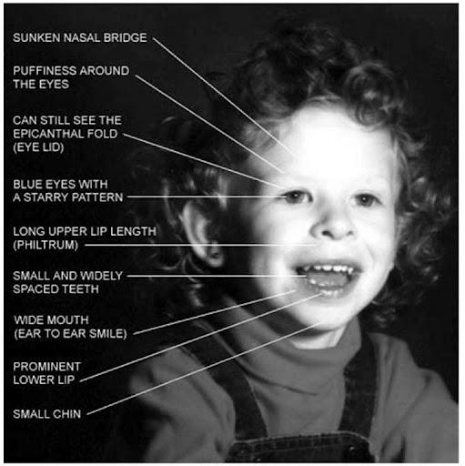 Major genetic disorders (Genetic disorders and inborn errors