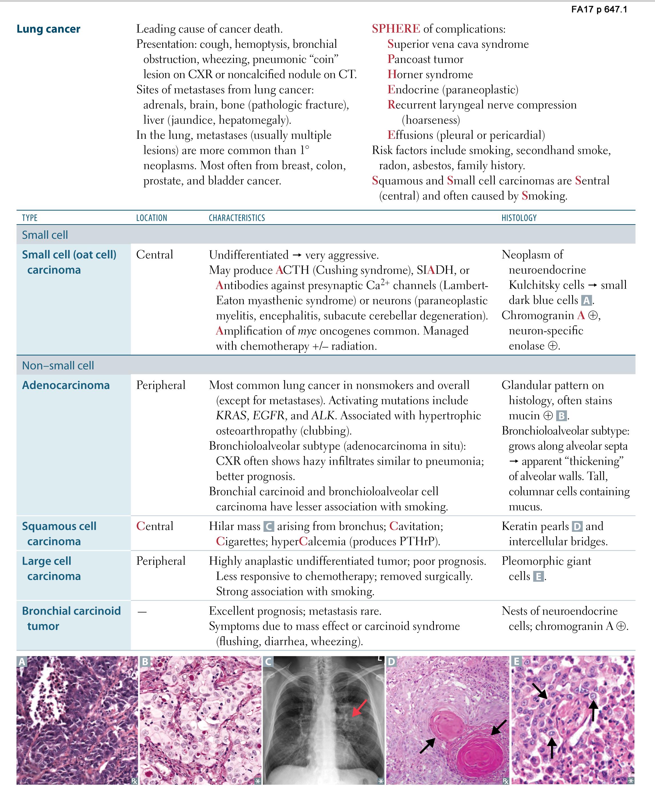Respiratory Pathology Lung Cancer Usmle Rx 2017 Respiratory Pathology Lung Cancer Flashcards Memorang