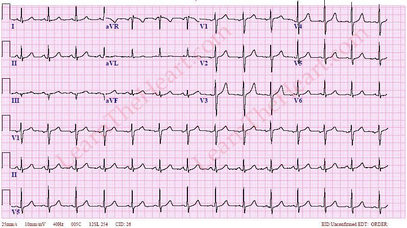 EKGs (USMLE Step 2 CK Cardiology) Flashcards | Memorang