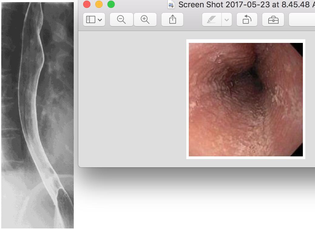 Esophagus Anatomy And Pathophysiology 523 Gi Flashcards Memorang