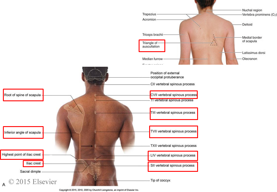 2.01 - vertebral column + back muscles (anatomy) flashcards | memorang, Human Body