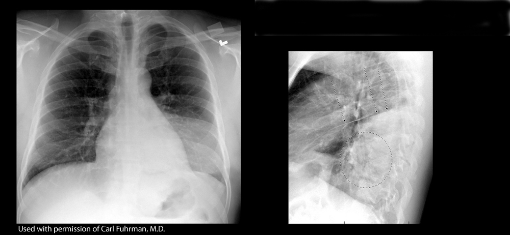 Chest Xray Ct Radiology Flashcards Memorang