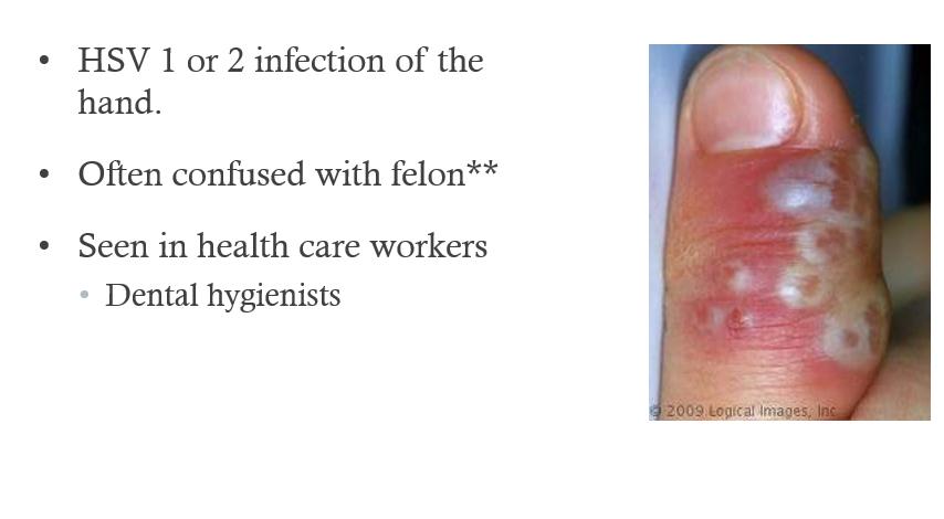 Hand infections (SMBJ 2) Flashcards | Memorang