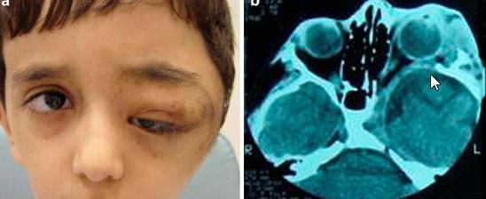 genetics exam ii (neurofibromatosis and marfan syndrome, Human Body