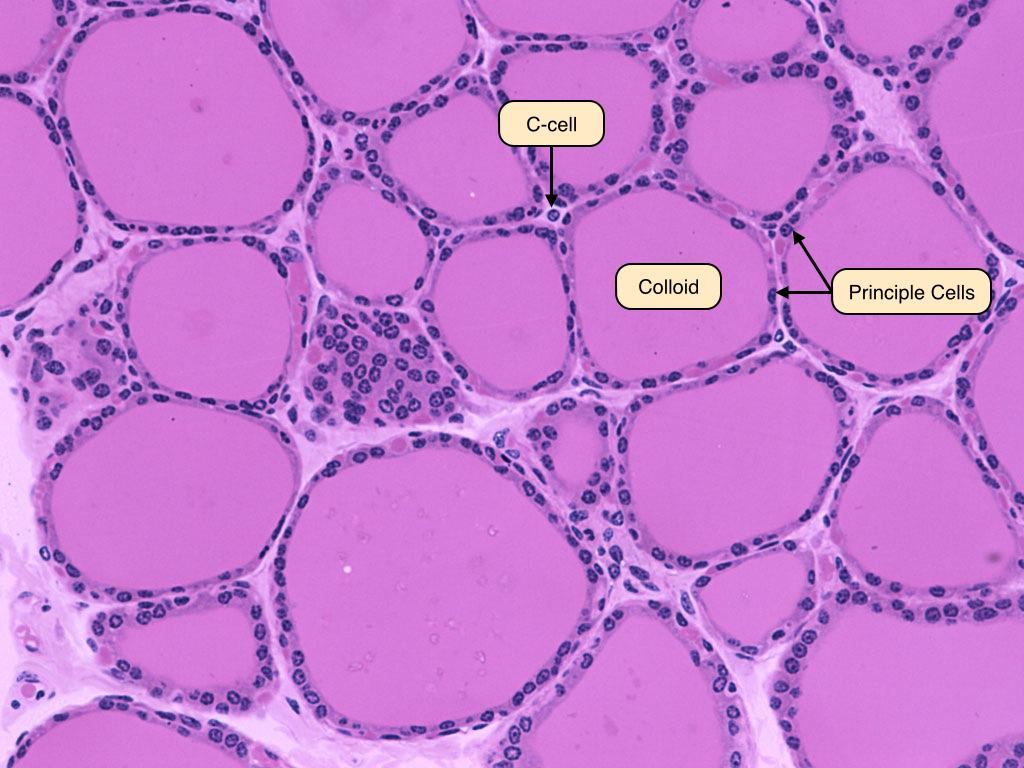 Thyroid Pathology Endocrine Flashcards Memorang