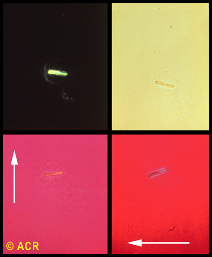 C4T2L25 Biochemistry: Bum Knee (Gout EL Taught by Profs  Valeriano