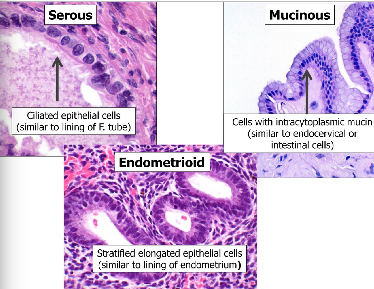 Ovarian Tumor Pathology 4 24 Repro Flashcards Memorang