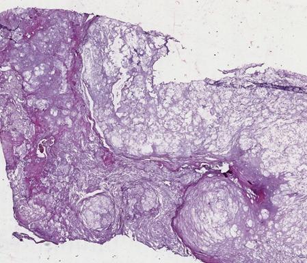 Chondroma Histology
