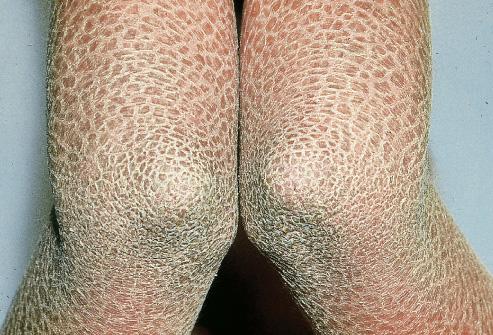 Skin Pathology Disorders Baby Robbins (Skin Pathology