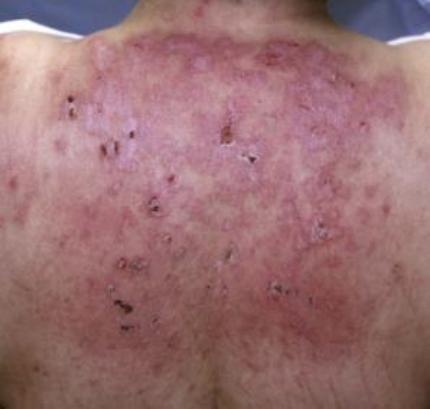 Derm Cutaneous Manifestations Of Systemic Disease Dermatology Flashcards Memorang