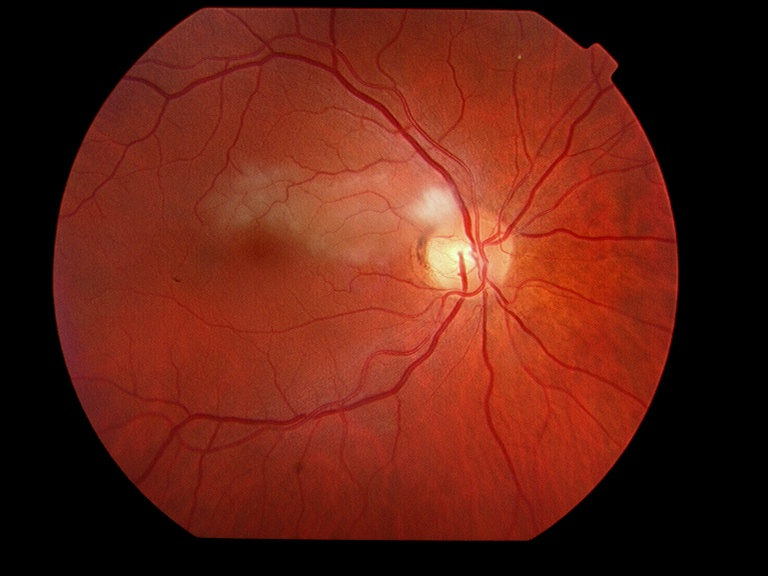 Cholesterol retinal embolus