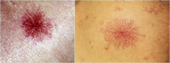 Cardiovascular Tumors I (Dr  Wang) Flashcards | Memorang