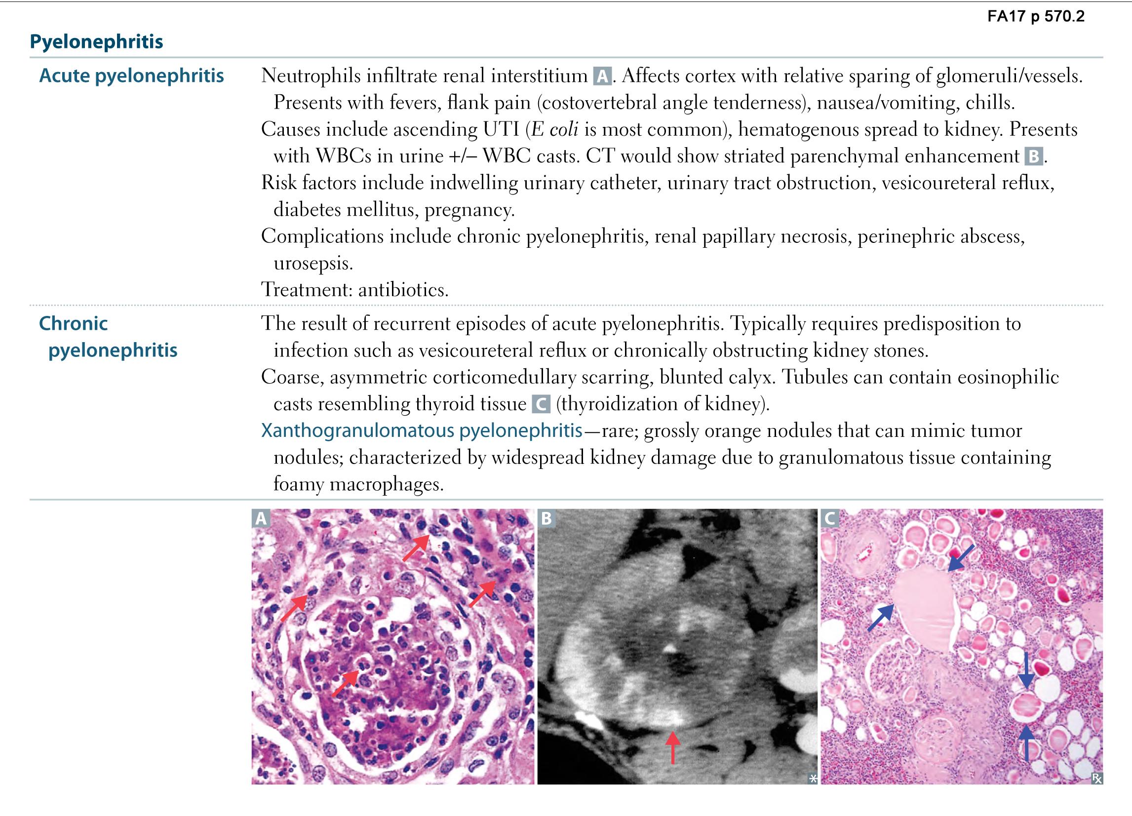 Renal Pathology - Pyelonephritis (USMLE Rx 2017: Renal - Pathology